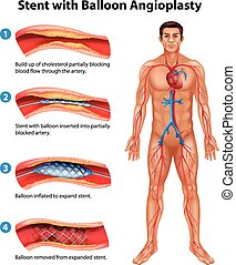 Stent angioplasty procedure - A stent angioplasty procedure