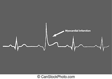 Heart Attack On Blackboard Electrocardiogram