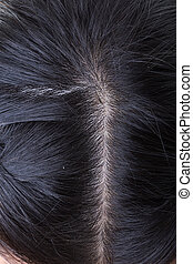primer plano,  dandruff, imagen, pelo, negro, cabeza