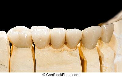 dental, cerámico, Puente,