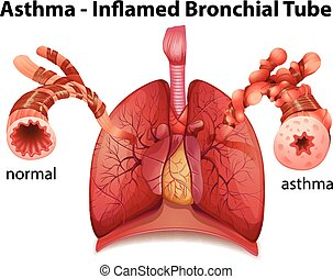 Bronchial asthma - An image showing the asthma-inflamed...