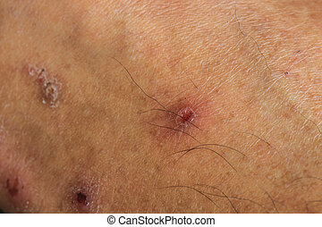 scar on the human skin close up