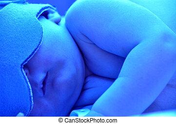 recién nacido, ictericia,