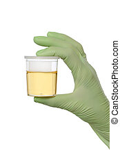 Urine sample in bottle, medical exam - Human hand in glove...