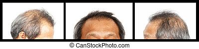Hair loss , Male head with hair loss symptoms, set 3, front, lef