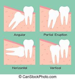 Wisdom Tooth - Wisdom tooth, vector