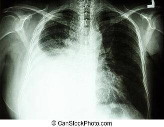 pleural effusion due to lung cancer - film chest X-ray PA...