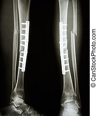 fracture shaft of tibia and fibula - film leg APlateral :...
