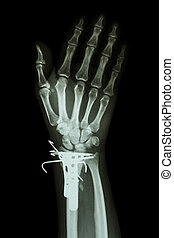 fracture distal radius (forearm's bone). It was operated and...
