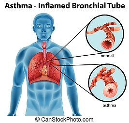 Asthma-inflamed bronchial tube - An image showing the...