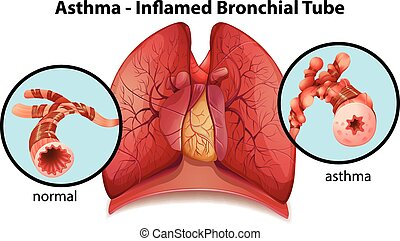 un, asthma-inflamed, bronquial, tubo,