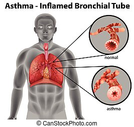 Asthma-inflamed bronchial tube on a white background