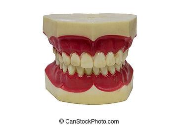 假牙, 丙烯酸, 集合