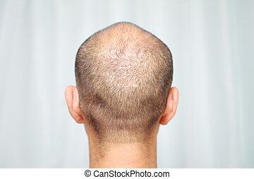 thin hair -  back shot of a male head of thin hair
