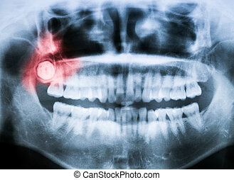 Closeup x-ray of impacted wisdom tooth - Closeup x-ray image...