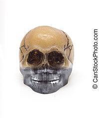 cranio, Raio X