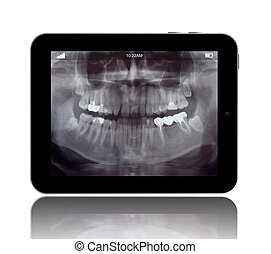 Human Teeths X-ray on the Digital Tablet isolated on white
