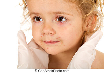 Little girl with small pox at the physician