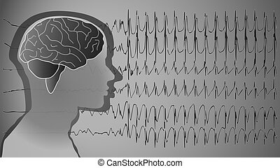 medical background brain epilepsy - a medical background...