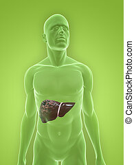 human bad liver - 3d rendered illustration of a human body...