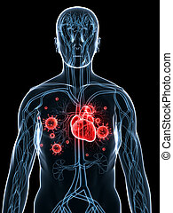 heart infection - 3d rendered illustration of a transparent...