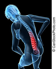 backache - 3d rendered illustration of a transparent female...