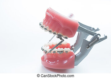 Dental lower jaw bracket braces model on white. Selective...