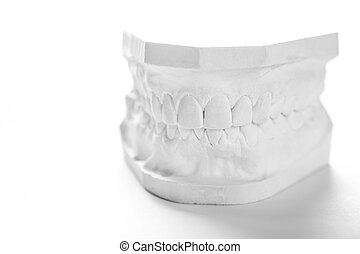 Gypsum model of human jaw on a white background. - Dental...