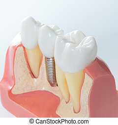 Dental implant - Close up of a Dental implant model...