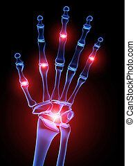 painful hand joints - 3d rendered illustration of a skeletal...