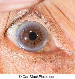 EYe exam - Close up of the  cataract during eye examination.