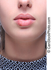 beautiful lips virus infected herpes - close up. beautiful...
