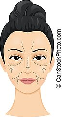 Incision Lines - Illustration of a Woman with Incision Lines...