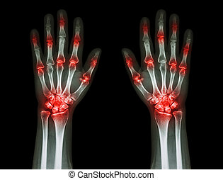 multiple joint arthritis both hands ( Gout , Rheumatoid ) on...