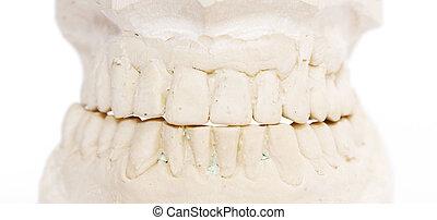 dental imprint - dental impression isolated against white...
