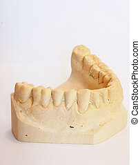 dental impression 3 - dental impression isolated against...