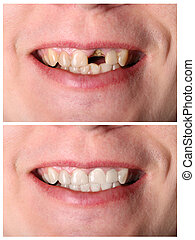 Incisive tooth restoration before and after treatment