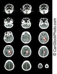 Hemorrhagic Stroke CT scan computed tomography of brain...
