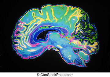 Coloured MRI Scan Of Human Brain - Artificially Coloured MRI...
