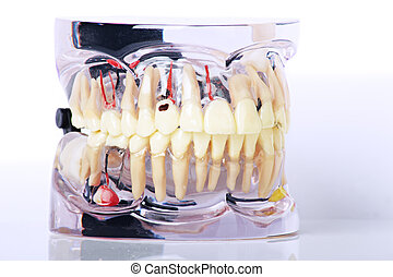 close up of dental Moulage with dental problems isolated on...