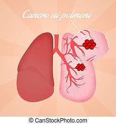 Lungs cancer - illustration of lungs cancer