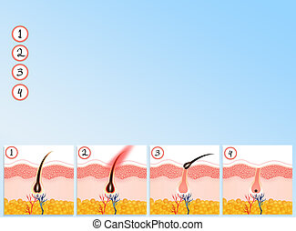 hair removal - illustration of hair removal