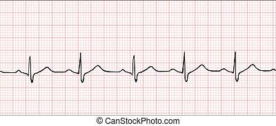 electrónico, cardiograma, Ilustración