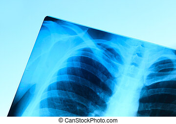 X-ray image of chest bones of adult, abstract blue...