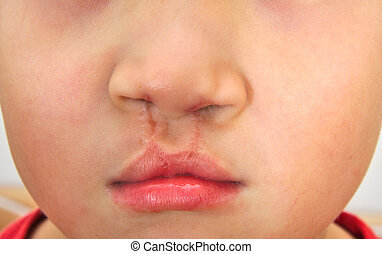 Boy showing bilateral cleft lip repaired. - Boy showing a...