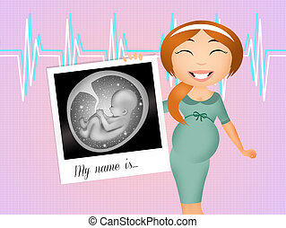 ultrasound in pregnancy - illustration of ultrasound in...
