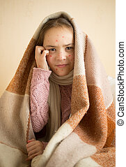 itching little girl with chickenpox - Portrait of itching...
