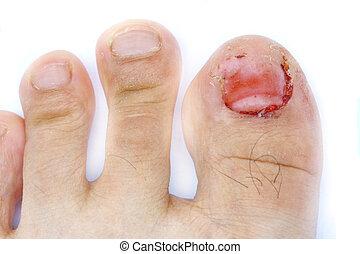 Do que tratar um fungo na pele de polegar