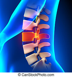 L3 Disc - Lumbar Spine