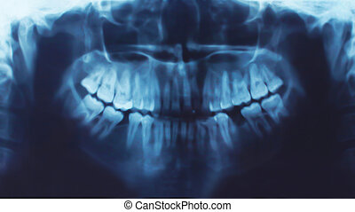 X-ray of teeth, stomatology concept